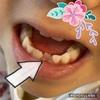 【育児5歳】2本目の乳歯は抜けずに抜歯しました