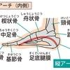足の裏の痛みの原因となる「足底腱膜炎」について整形外科医が解説してみました