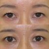 たるみ取りなしの眼瞼下垂症手術  なにがなんでも末広型二重に 40代女性