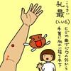 肺経(LU)6 孔最(こうさい)