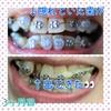 【写真あり】3ヶ月目にして、隠れていた2番目の歯が出てきた👀