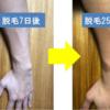 【実録3】グルーポン活用のダビデ医療脱毛980円はコスパ最高!