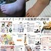 美脚も様変わりする40代からの足のむくむ原因とその解消法は?