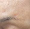 日光角化症の治療について