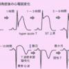 心筋梗塞における心電図の推移