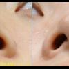 切らない小鼻縮小です。小鼻が小さくなりました。傷あとも全く分かりません。