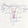 子宮鏡下手術