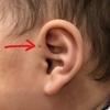 耳のところの小さな穴は何?