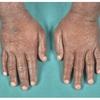 症例:BMJ 48歳男性 発熱+手足の腫れ・痛み