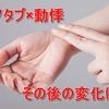 【体験談】AGA治療9ヶ月目!(ヘアクリ3ヶ月目)「動悸は慣れる」は名言か?