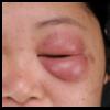 症例:BMJ 27歳女性 まぶたが腫れた
