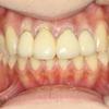 歯周病の方のオールセラミック治療症例
