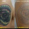 肩のマルチカラータトゥーのピコレーザー治療です