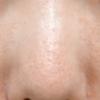 鼻ボトックスしました。皮脂の分泌を抑えます。皮脂がでなくなるので、角栓ができにくくなり、毛穴の開き、汗による化粧崩れも防げます。