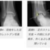 靭帯断裂・・・手術の説明を受ける