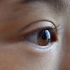 白目を白くしたい!澄んだ目を取り戻す7つの方法