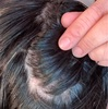 【円形脱毛症】ハゲにステロイド注射5回目!【ケトコナゾール】