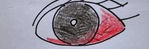 【年金生活のアクシデント】左目が真っ赤になって眼科へ!痛い2500円の出費。