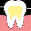 歯のホワイトニングを始めました