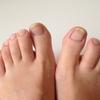 爪水虫の症状や放置による危険性!正しい対策やケアの方法は?
