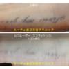 手の黒いタトゥーの治療後写真です
