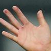 指のマメで2度目の降板、大谷翔平はマメを作らない「湿気対策」をすべし。