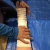 山で足を捻ったらどうするか? 捻挫と骨折の応急処置について考える