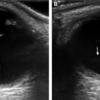 症例13:右目の視力が低下した39歳男性(Ann Emerg Med. 2020 Nov;76(5):e119-e120.)