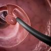 大腸癌 内視鏡は2㎝が境目