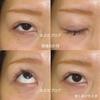 埋没後の全切開と挙筋前転術 〜先天性眼瞼下垂 20代女性 経過とダウンタイム〜