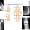 やっぱり人工股関節、人工膝関節はよくできたシステムだと認識した 人工肘関節はまだまだ玄人向きである