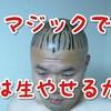 【実験】つるハゲ、マジックで描き足せば毛を再生できるか試みた。