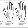 皮膚のバリア機能が低い人の手相が深くなる「パーマーハイパーリニアリティ」とは?