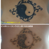 黒くベタッとしたタトゥーが5回の治療で薄くなりました。
