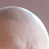 「禿頭(とくとう)考」〜なぜ男たちは禿げるのか