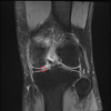【膝の痛み】ピンチ!MRI検査で、半月版の小さな亀裂と骨壊死が判明。。