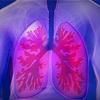 COPD治療の落とし穴 抗コリン薬の副作用に注意