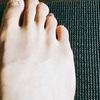 疲労骨折?足の指・甲(中足骨)の痛みの原因と対策について