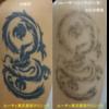 腕の濃いタトゥーにピコレーザー治療をしています。