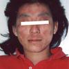 アトピー性皮膚炎の改善写真(20代女性)