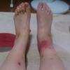 ベーチェット病の発症2〜蜂窩織炎?〜