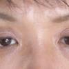 眼瞼下垂症の手術
