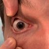 症例73:テニスボールが右目に当たってから目がぼやける54歳男性(J Am Coll Emerg Physicians Open. 2020 Sep 15;1(6):1736-1737.)