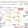 不整脈(心不全):ペースメーカー CRT(心臓再同期療法)について 〜基本39〜