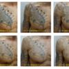 黒いインクのタトゥー、5回の治療経過をまとめてみました