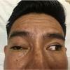 症例99:顔面骨折後に複視を呈した36歳男性(Ann Emerg Med. 2021 Feb;77(2):179-220.)