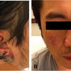 症例69:1か月持続する発熱と頸部リンパ節腫脹および両耳の痂皮/壊死が出現した42歳男性(J Emerg Med. 2020 Dec;59(6):927-930.)