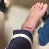 脛骨骨折手術後6周目のリハビリ&水泡その後