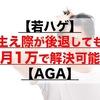 【若ハゲ】生え際が後退しても月1万で解決可能【AGA】