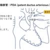 Low flow(肺血流が減少する疾患)について考えよう 基本9
